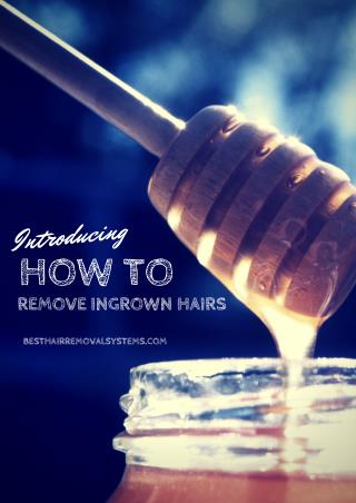How to remove Ingrown Hairs 5 Steps Treatment Guides