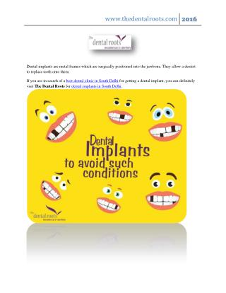 Best Dental Implants Clinic in South Delhi