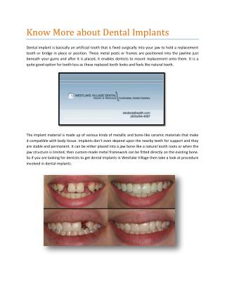 Know More about Dental Implants
