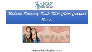 Beautiful Smile With Clear Ceramic Braces - Hungary Dental Implant London