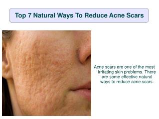Top 7 natural ways to reduce acne scars