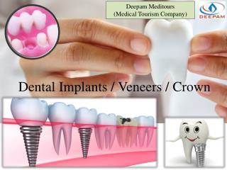 Dental - Implants Veneers & Crown