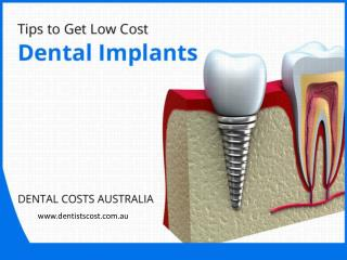 Expert Tips to Get Low Cost Dental Implants in Australia