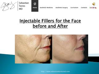 Injectable Fillers for The Face Before and After