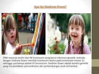 Apa itu Sindrom Down