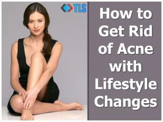 How To Get Rid Of Acne With Simple Lifestyle Changes