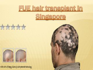 FUE hair transplant in Singapore