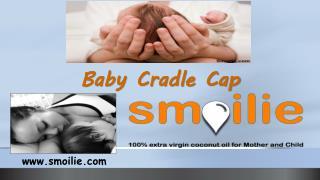 Baby Cradle Cap