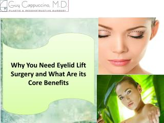 Why You Need Eyelid Lift Surgery and What Are its Core Benefits