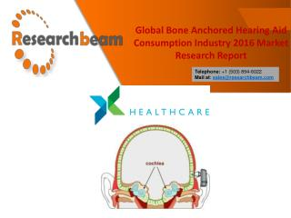 Global Bone Anchored Hearing Aid Consumption Industry 2016