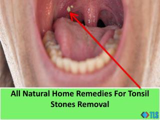 All Natural Home Remedies For Tonsil Stones Removal