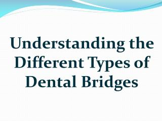 Understanding the Different Types of Dental Bridges