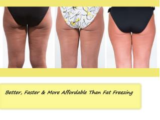 Better, Faster & More Affordable Than Fat Freezing