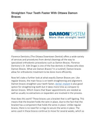 Straighten Your Teeth Faster With Ottawa Damon Braces