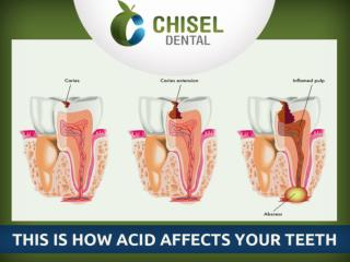 This is How Acid affects your Teeth