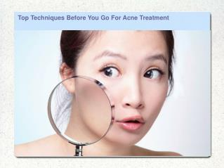 Top Techniques Before You Go For Acne Treatment