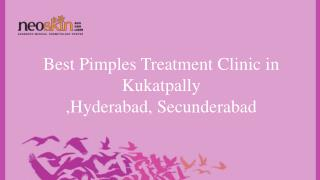 Best Pimple Treatment in Hyderabad India - neoskin.in