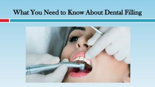 What You Need to Know About Dental Filling