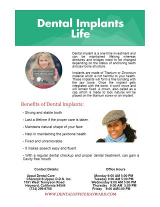 Dental Implant in Hayward by Implant Dentist Dr. Uppal
