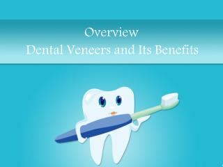 An In-Depth Overview of Dental Veneers
