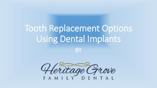 Tooth Replacement Options Using Dental Implants