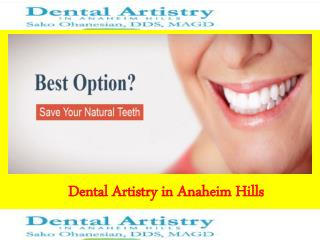 Dental Implant Orange County