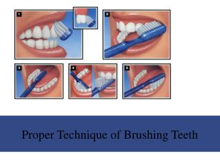 Proper Technique of Brushing Teeth