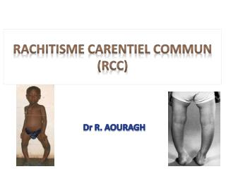 Rachitisme carentiel commun