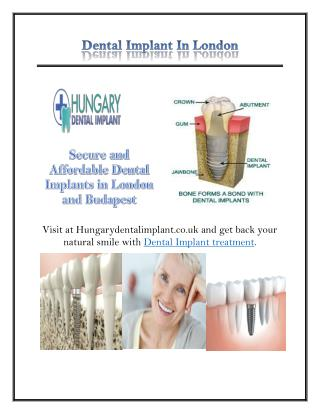 Dental Implant In London