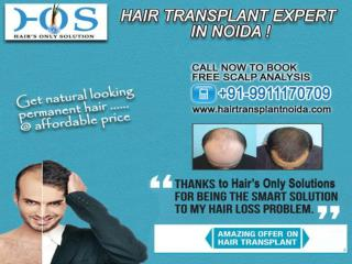 Hair transplant expert in noida