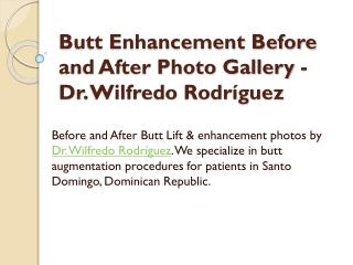 Butt Enhancement Before and After Photo Gallery - Dr. Wilfredo Rodr�guez