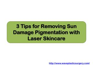 3 Tips for Removing Sun Damage Pigmentation with Laser Skincare