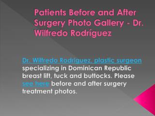 Patients Before and After Surgery Photo Gallery - Dr. Wilfredo Rodríguez