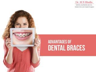 Advantages Of Dental Braces