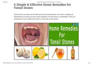 6 Home Remedies for Tonsil Stones