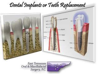 Dental Implants Medical Services by Etoms