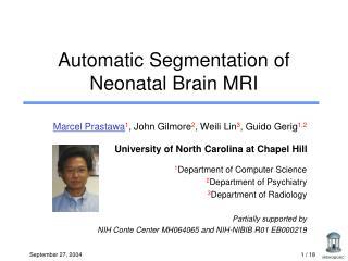 Automatic Segmentation of Neonatal Brain MRI