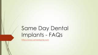 SameDay Dental Implants - FAQs