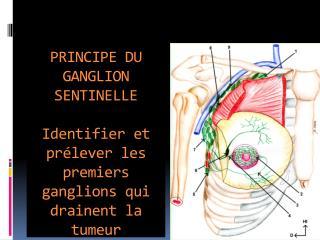 PRINCIPE DU GANGLION SENTINELLE  Identifier et pr lever les premiers ganglions qui drainent la tumeur