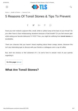 5 Reasons Of Tonsil Stones & Tips To Prevent
