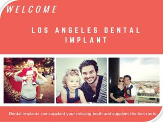Los Angeles Tooth Implant
