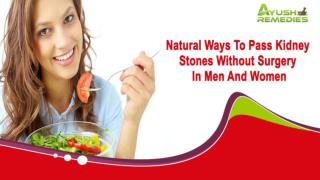 Natural Ways To Pass Kidney Stones Without Surgery In Men And Women