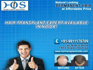 Hair Transplant in Delhi at Discount Price