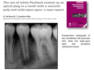 Preoperative radiograph of the mandibular left premolar 35. Note the wide-open apex and periapical radiolucent lesion.