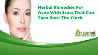 Herbal Remedies For Acne With Scars That Can Turn Back The Clock