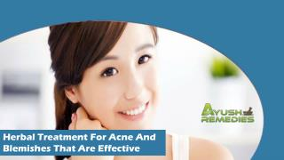 Herbal Treatment For Acne And Blemishes That Are Effective
