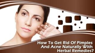 How To Get Rid Of Pimples And Acne Naturally With Herbal Remedies?