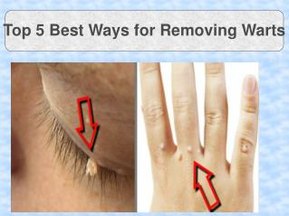 Top 5 Best Ways for Removing Warts