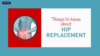 Are You Looking For Hip Replacement In India