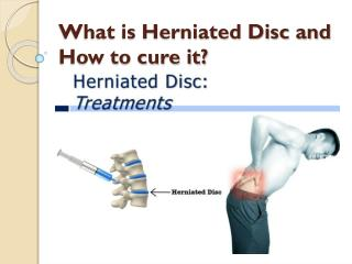What is herniated disc and how to cure it?
